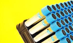 vacuette_tubes_1170-770x460